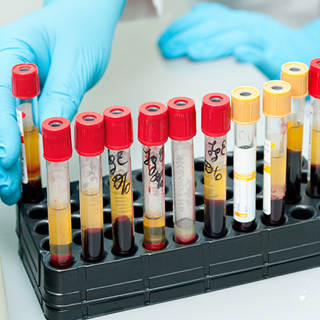 Coleta de Sangue e Materiais Biológicos